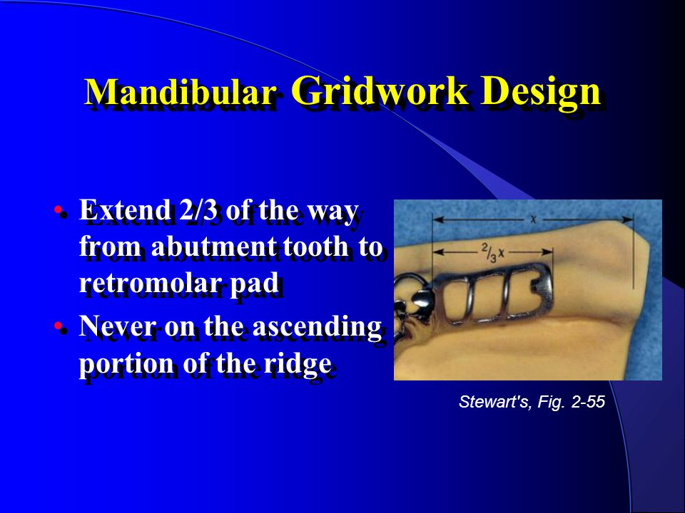 Mandibular Gridwork Design Extend 2/3 of the way from abutment tooth to retromolar pad Never on the ascending portion of the ridge Extend 2/3 of the w