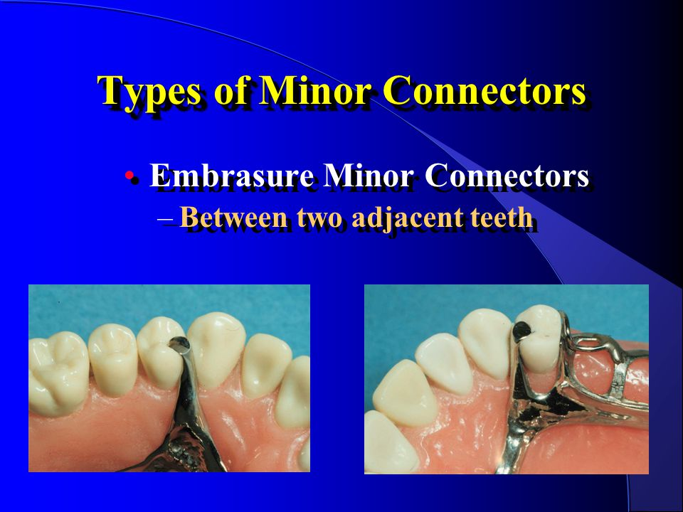 Types of Minor Connectors Embrasure Minor Connectors –Between two adjacent teeth Embrasure Minor Connectors –Between two adjacent teeth