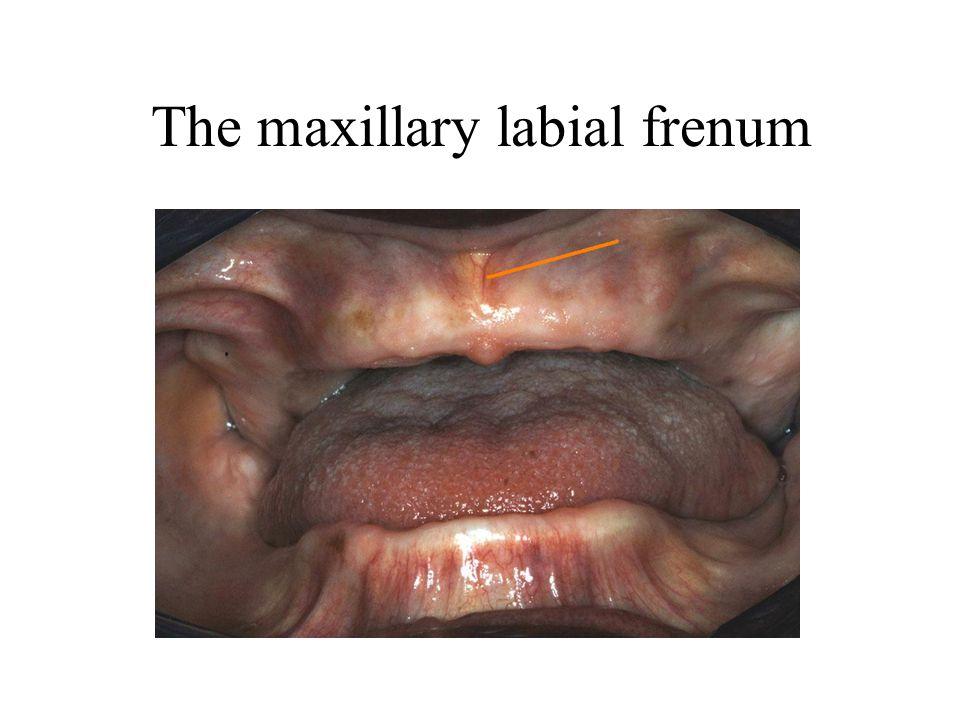 The maxillary labial frenum