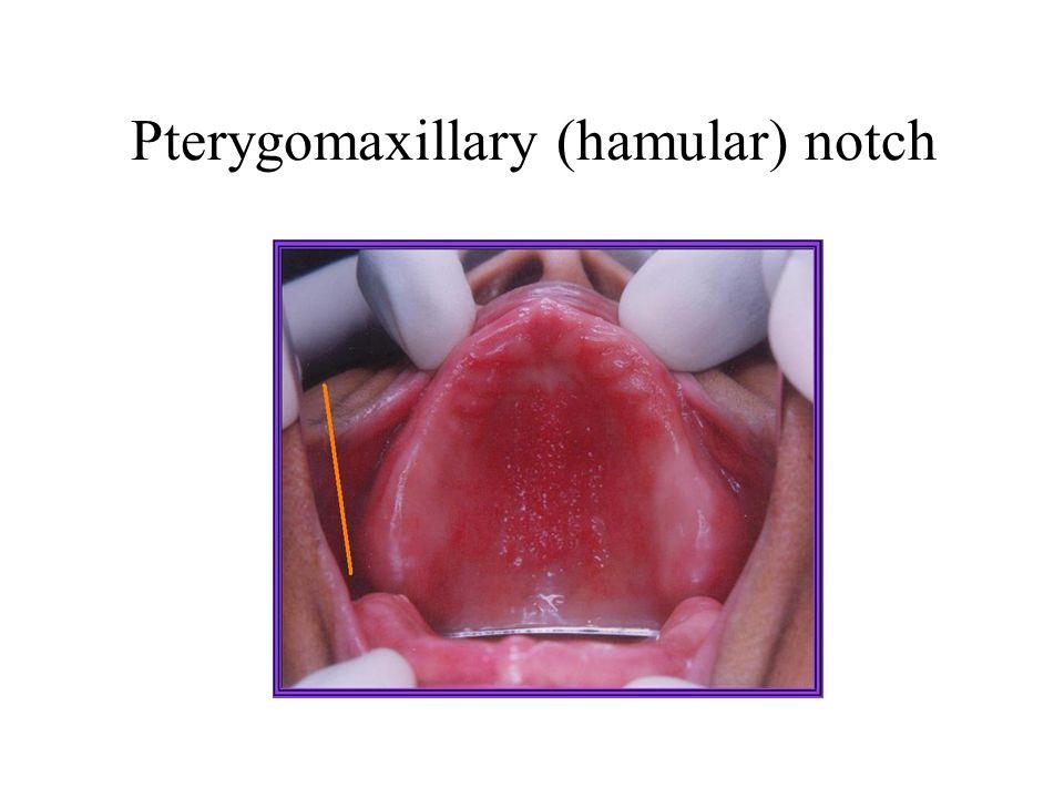 Pterygomaxillary (hamular) notch