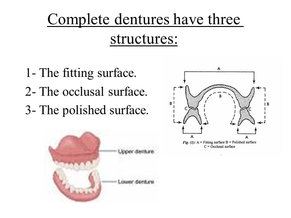 Complete dentures have three structures: 1- The fitting surface.
