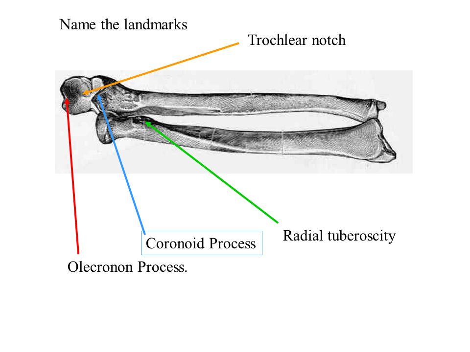 Name the landmarks Olecronon Process. Coronoid Process Radial tuberoscity Trochlear notch