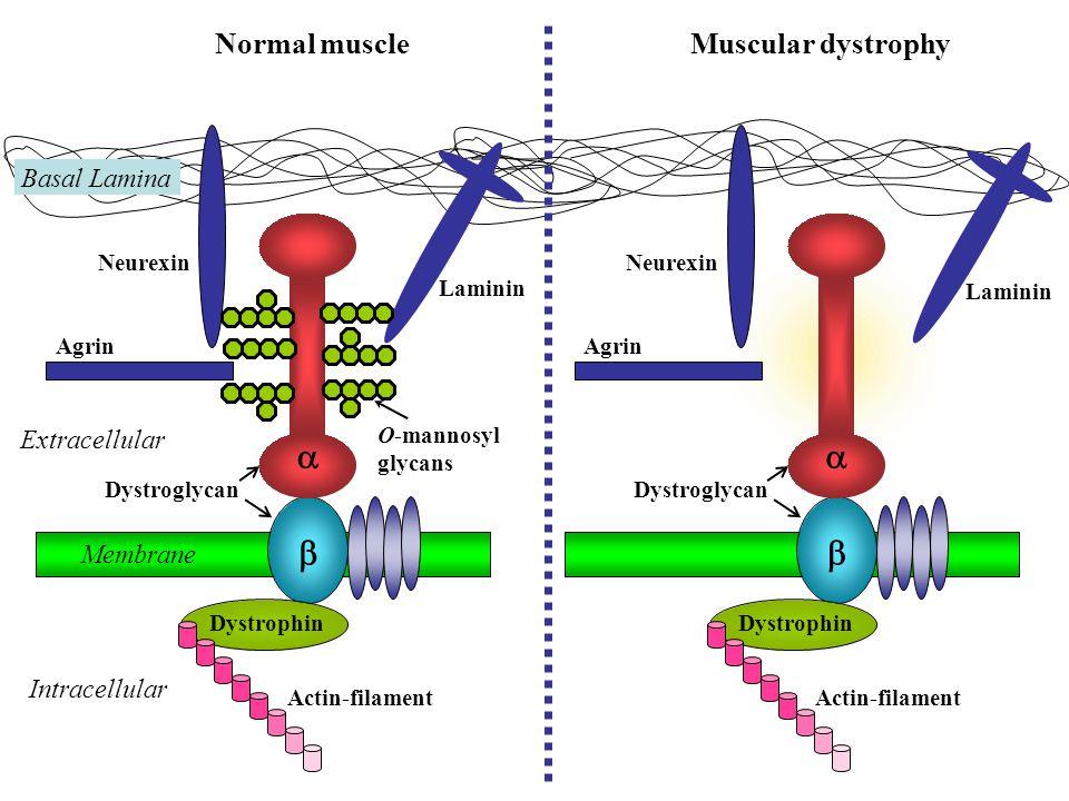 Normal muscleMuscular dystrophy Extracellular Intracellular Actin-filament Dystrophin   Dystroglycan Neurexin Agrin Laminin Membrane Basal Lamina Actin-filament Dystrophin   Dystroglycan Neurexin Agrin Laminin O-mannosyl glycans
