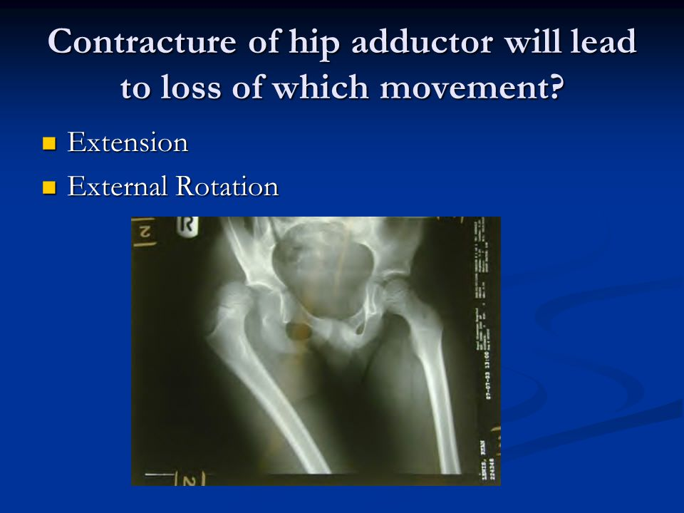 Contracture of hip adductor will lead to loss of which movement.