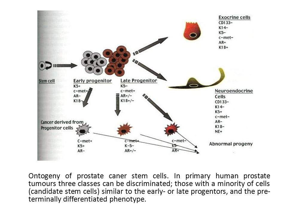 Ontogeny of prostate caner stem cells.