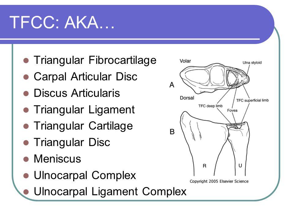 Triangular Fibrocartilage Complex a complex structure Consists of Triangular Fibrocartilage Ulnocarpal ligaments