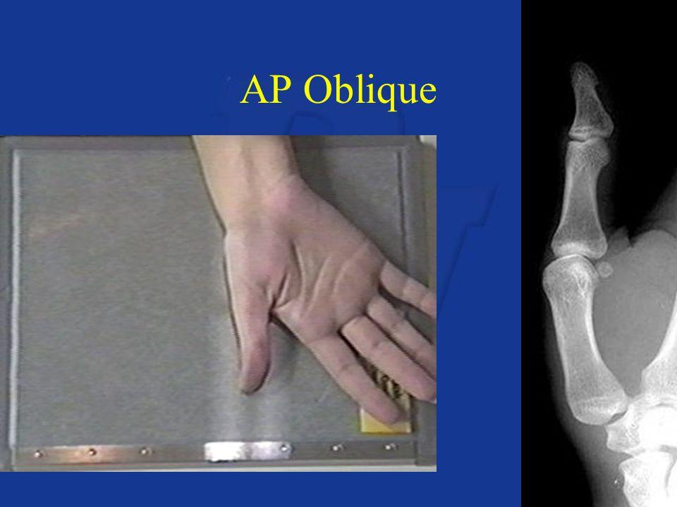 AP Oblique