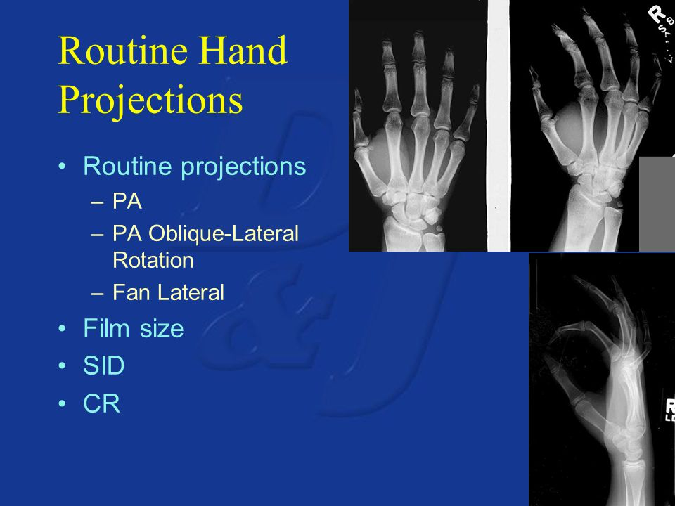 Routine Hand Projections Routine projections –PA –PA Oblique-Lateral Rotation –Fan Lateral Film size SID CR