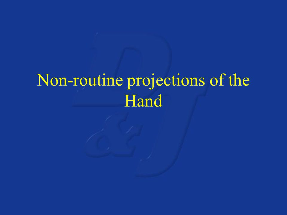 Non-routine projections of the Hand