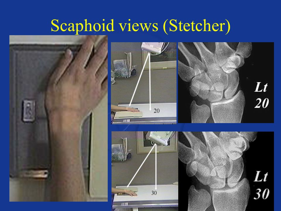 Scaphoid views (Stetcher)