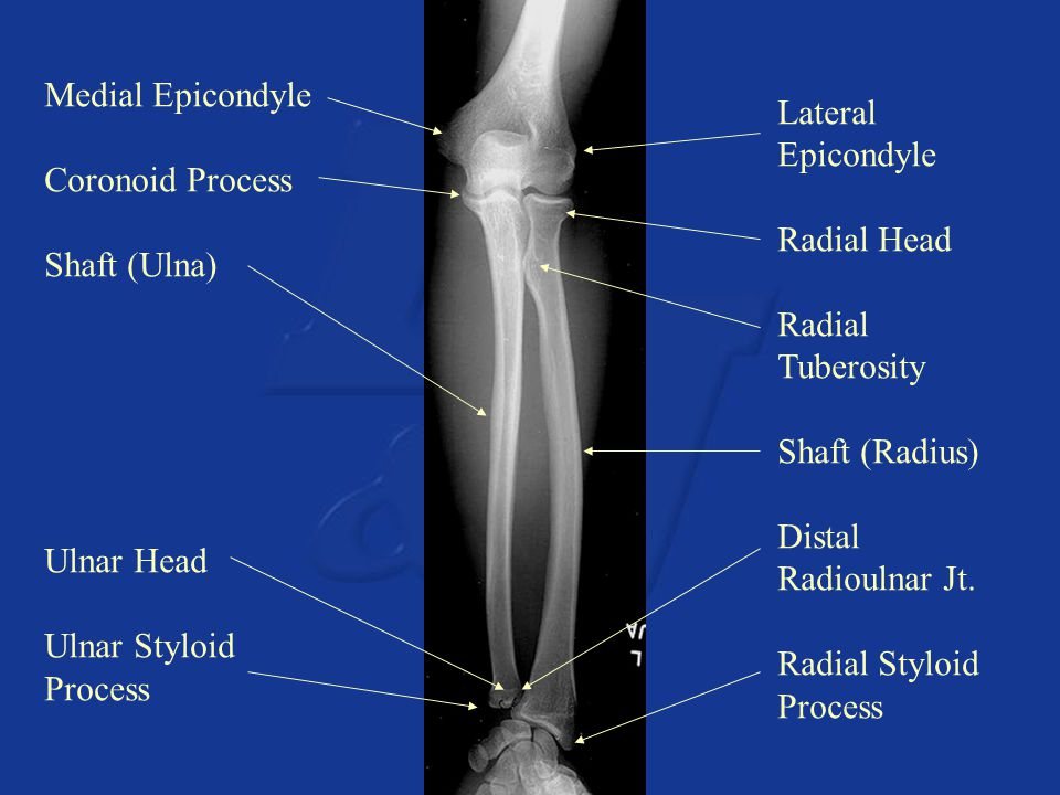 Medial Epicondyle Coronoid Process Shaft (Ulna) Ulnar Head Ulnar Styloid Process Lateral Epicondyle Radial Head Radial Tuberosity Shaft (Radius) Dista