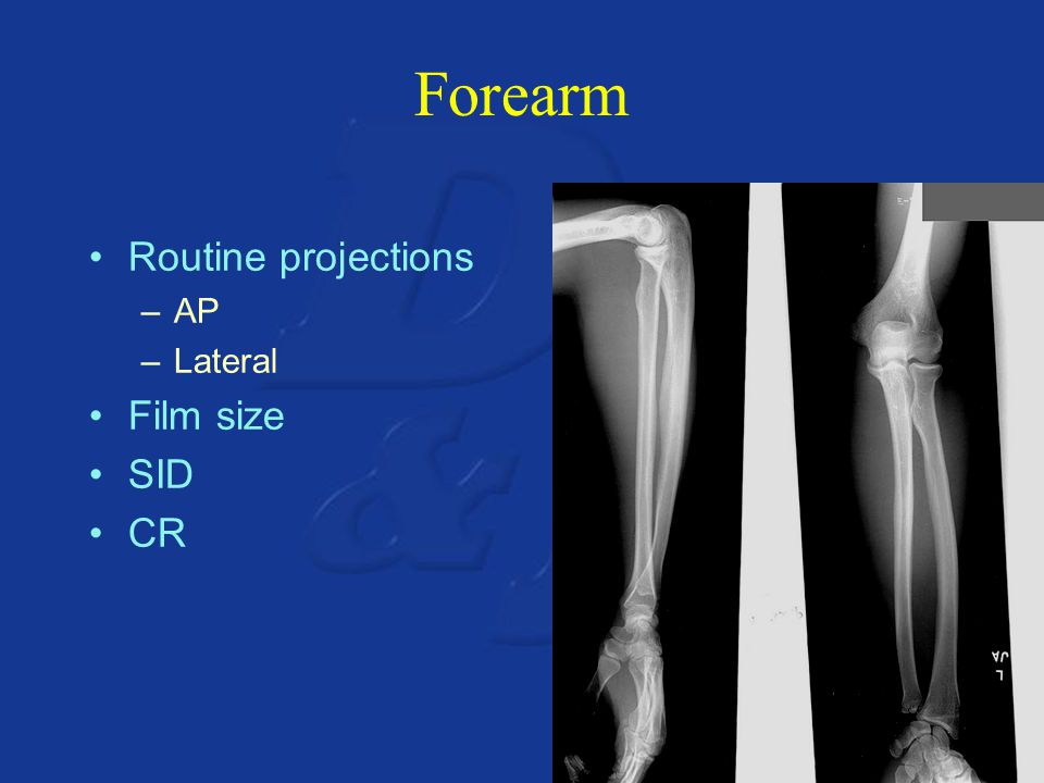 Forearm Routine projections –AP –Lateral Film size SID CR