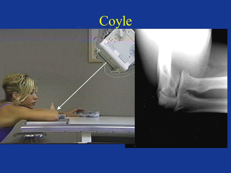 Coyle