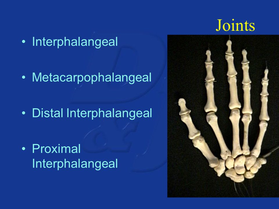 Joints Interphalangeal Metacarpophalangeal Distal Interphalangeal Proximal Interphalangeal