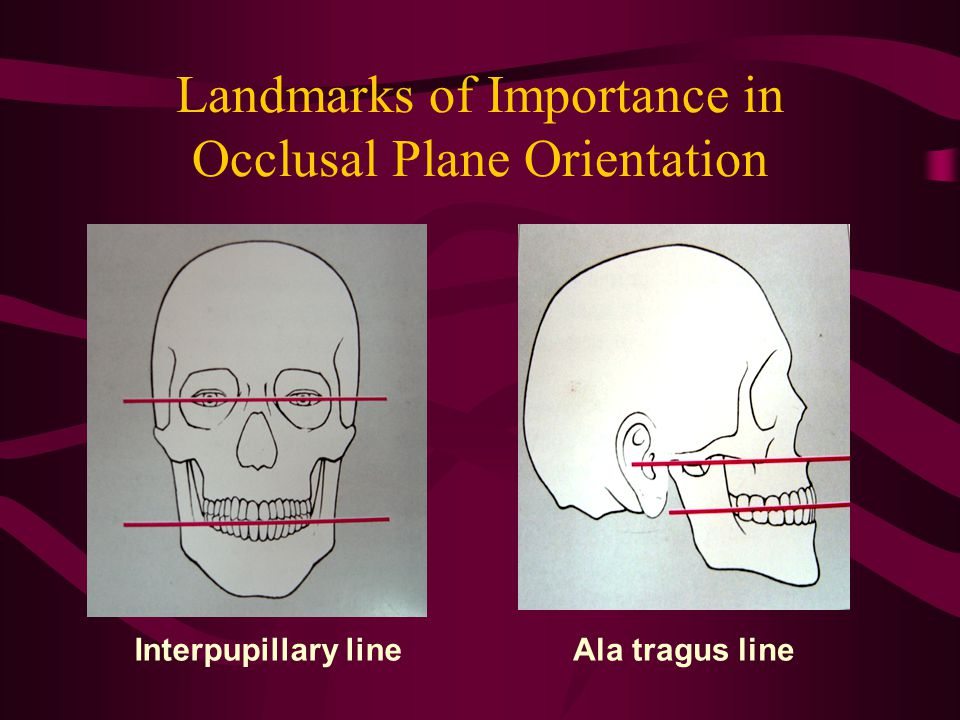 Landmarks of Importance in Occlusal Plane Orientation Interpupillary lineAla tragus line