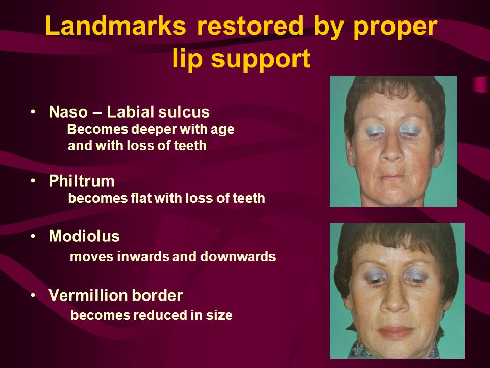 Landmarks restored by proper lip support Naso – Labial sulcus Becomes deeper with age and with loss of teeth Philtrum becomes flat with loss of teeth Modiolus moves inwards and downwards Vermillion border becomes reduced in size