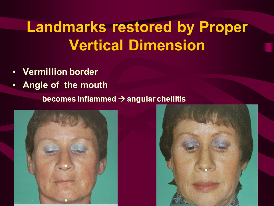 Landmarks restored by Proper Vertical Dimension Vermillion border Angle of the mouth becomes inflammed  angular cheilitis