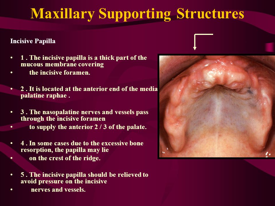 Maxillary Supporting Structures Incisive Papilla 1.