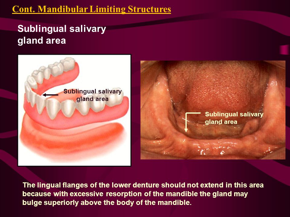 Sublingual salivary gland area Cont.