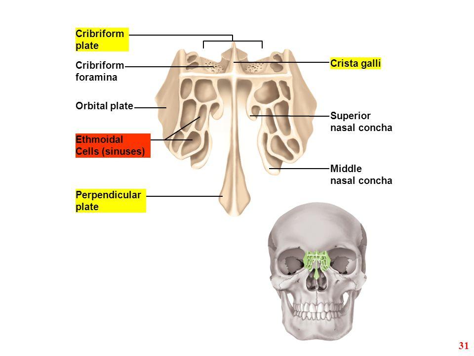 Orbital plate Crista galli Cribriform plate Cribriform foramina Ethmoidal Cells (sinuses) Perpendicular plate Superior nasal concha Middle nasal conch