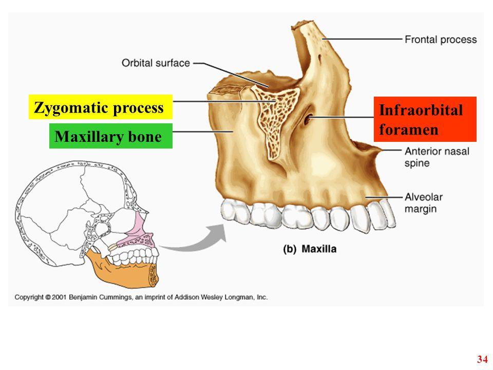 Zygomatic process Maxillary bone Infraorbital foramen 34