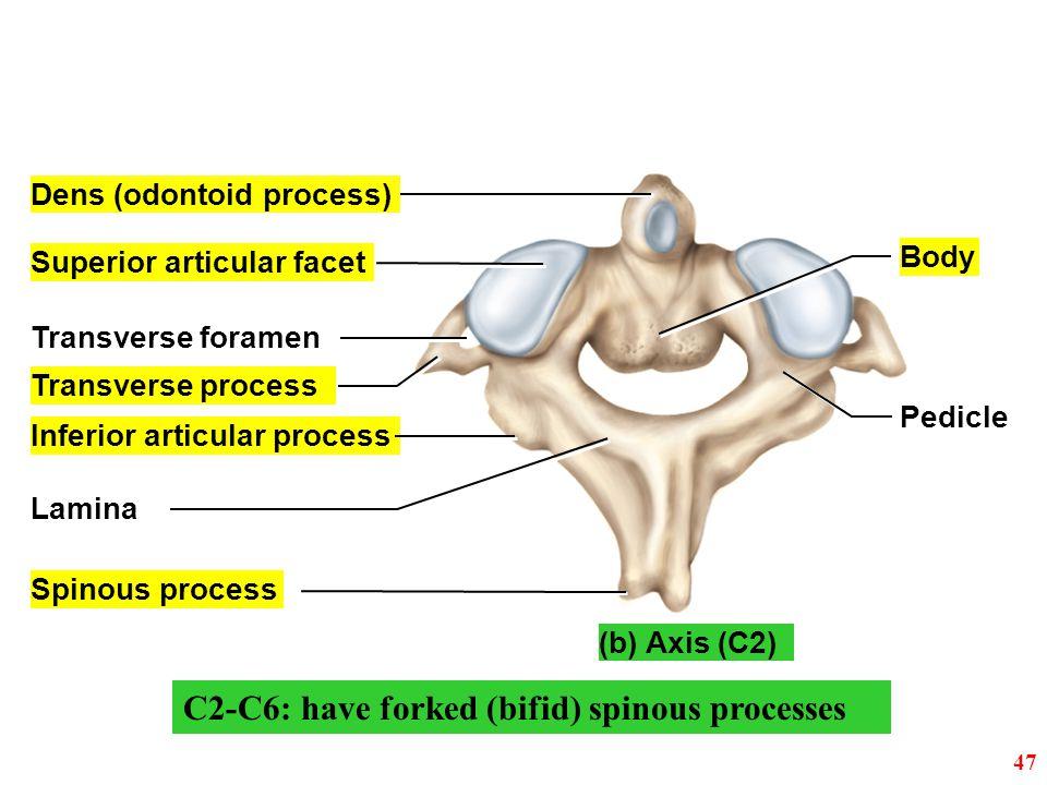 Inferior articular process Spinous process Lamina Dens (odontoid process) Superior articular facet Body Pedicle Transverse foramen Transverse process