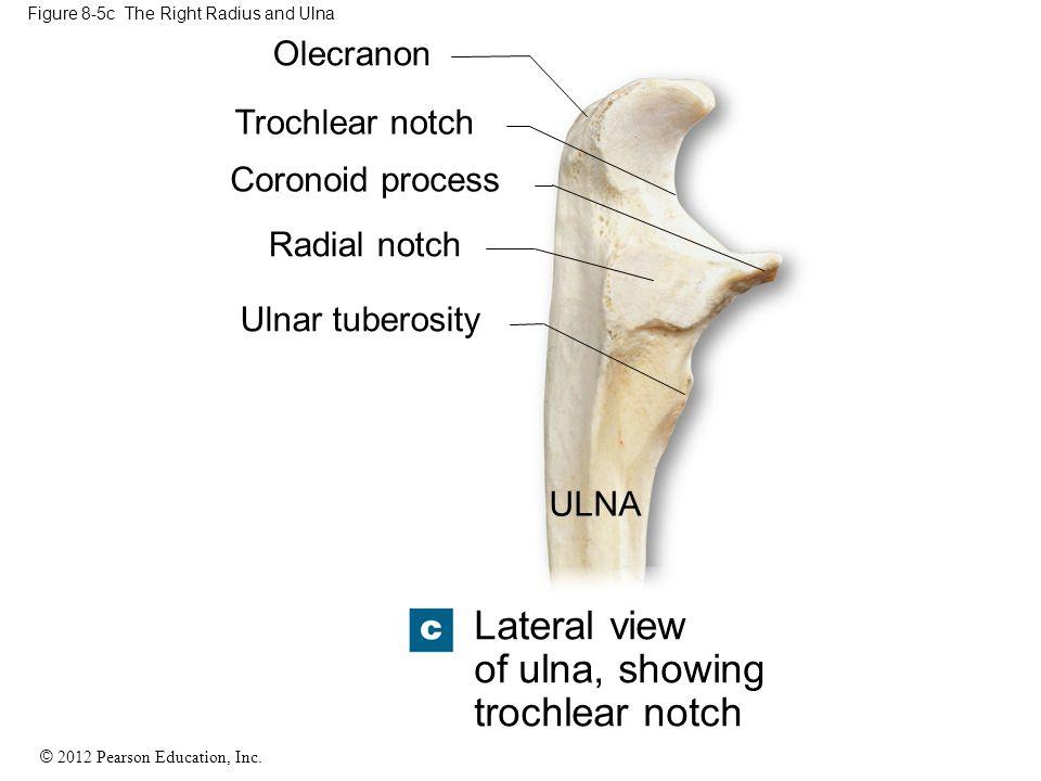 © 2012 Pearson Education, Inc. Figure 8-5c The Right Radius and Ulna Olecranon Trochlear notch Coronoid process Radial notch Ulnar tuberosity ULNA Lat