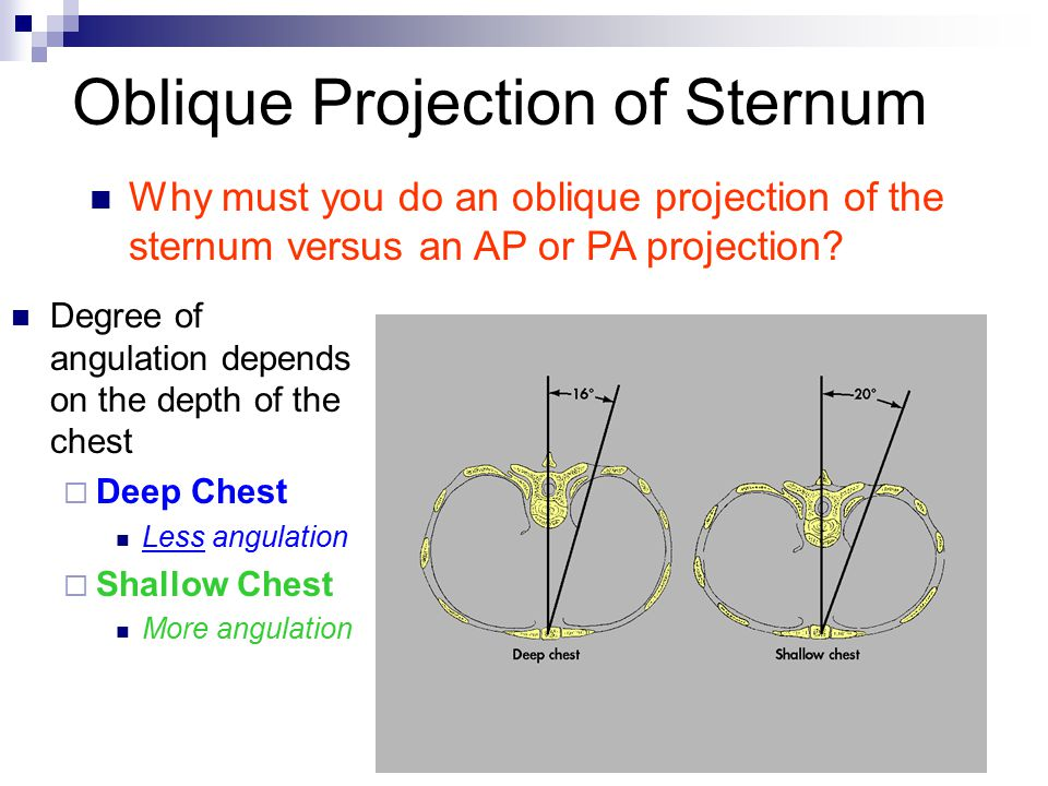 Oblique Projection of Sternum Degree of angulation depends on the depth of the chest  Deep Chest Less angulation  Shallow Chest More angulation Why must you do an oblique projection of the sternum versus an AP or PA projection?