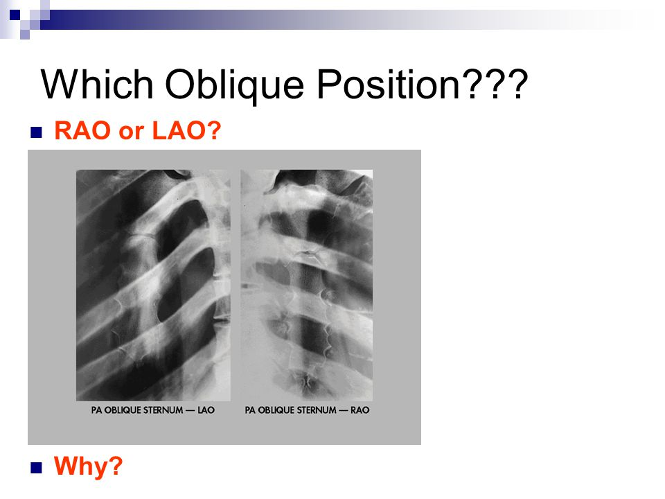 Which Oblique Position??? RAO or LAO? Why?