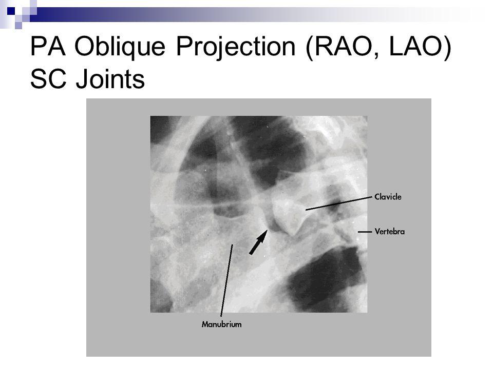 PA Oblique Projection (RAO, LAO) SC Joints