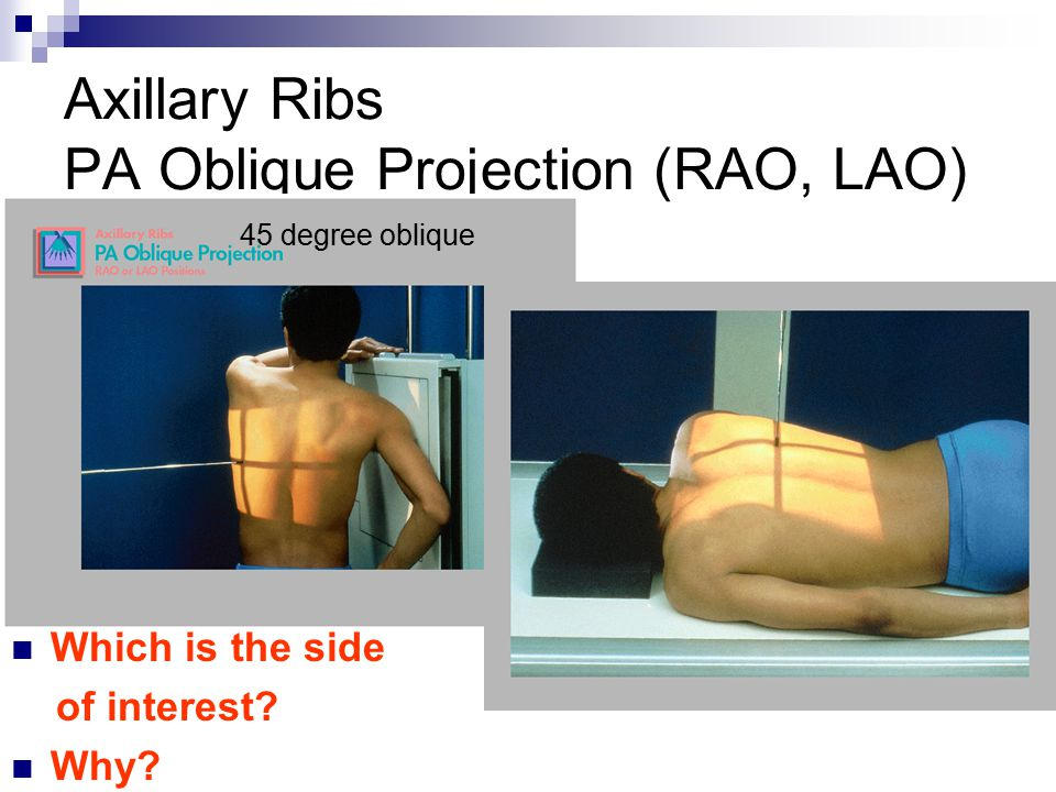 Axillary Ribs PA Oblique Projection (RAO, LAO) 45 degree oblique Which is the side of interest.