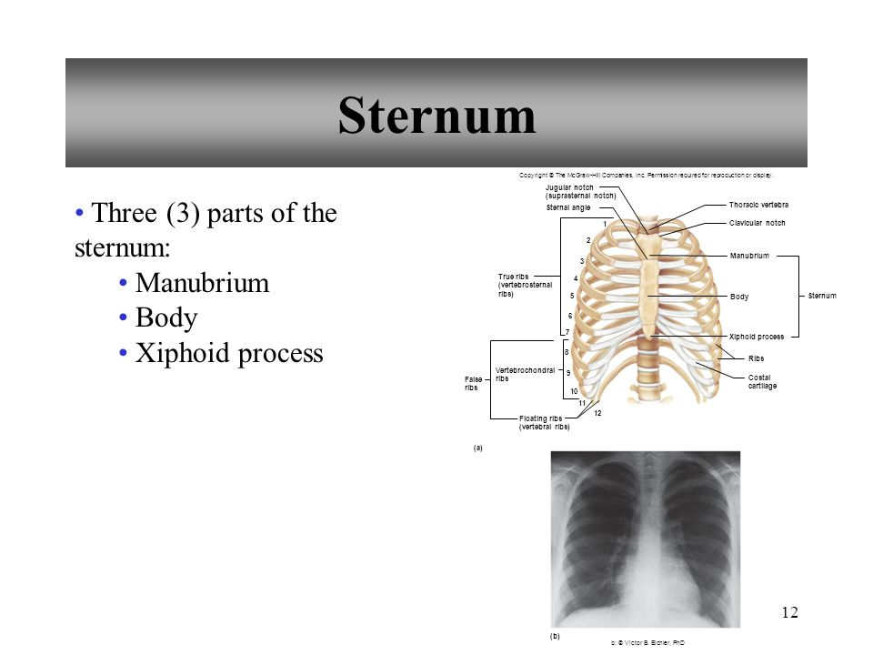 12 Sternum Three (3) parts of the sternum: Manubrium Body Xiphoid process 1 2 3 4 5 6 7 8 9 10 11 12 True ribs (vertebrosternal ribs) Vertebrochondral