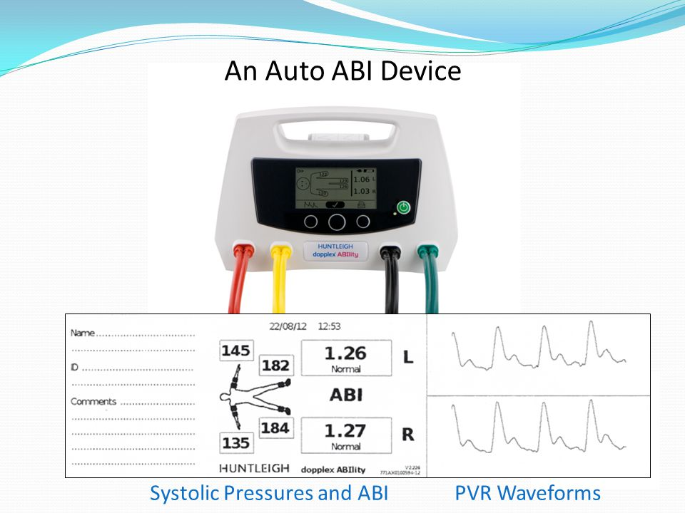 An Auto ABI Device Systolic Pressures and ABI PVR Waveforms