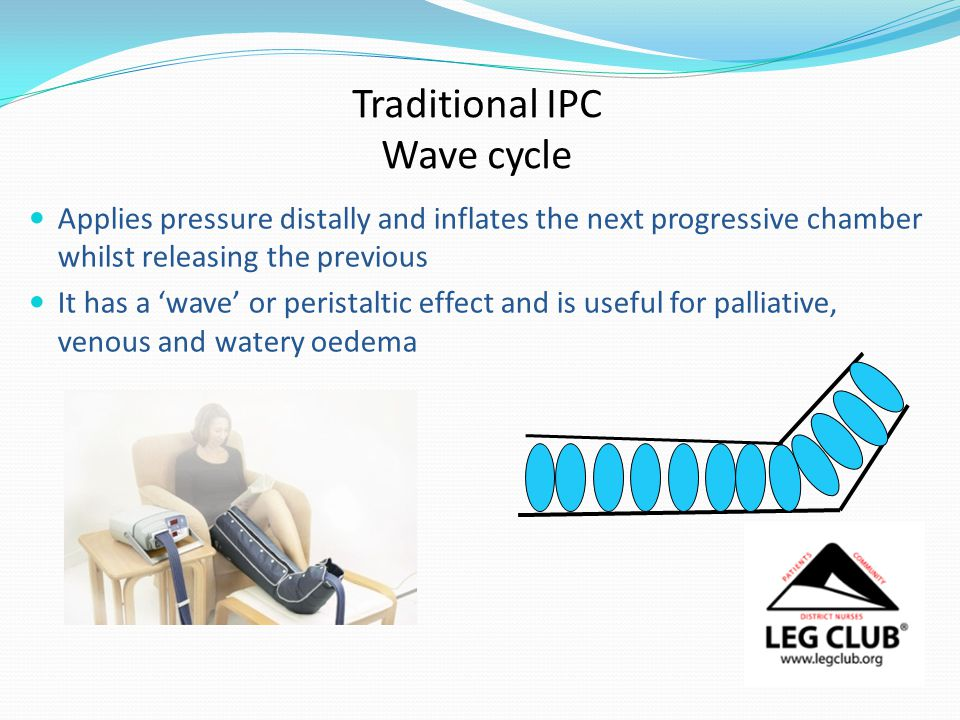Traditional IPC Wave cycle Applies pressure distally and inflates the next progressive chamber whilst releasing the previous It has a 'wave' or peristaltic effect and is useful for palliative, venous and watery oedema