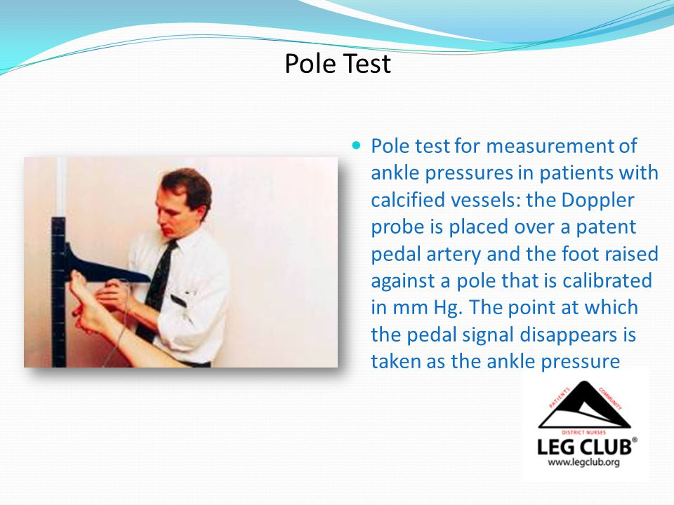 Pole Test Pole test for measurement of ankle pressures in patients with calcified vessels: the Doppler probe is placed over a patent pedal artery and the foot raised against a pole that is calibrated in mm Hg.
