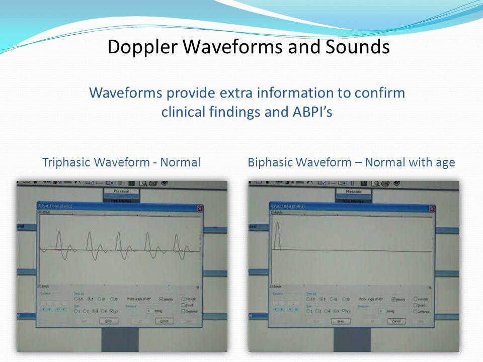 Triphasic Waveform - NormalBiphasic Waveform – Normal with age Waveforms provide extra information to confirm clinical findings and ABPI's Doppler Waveforms and Sounds