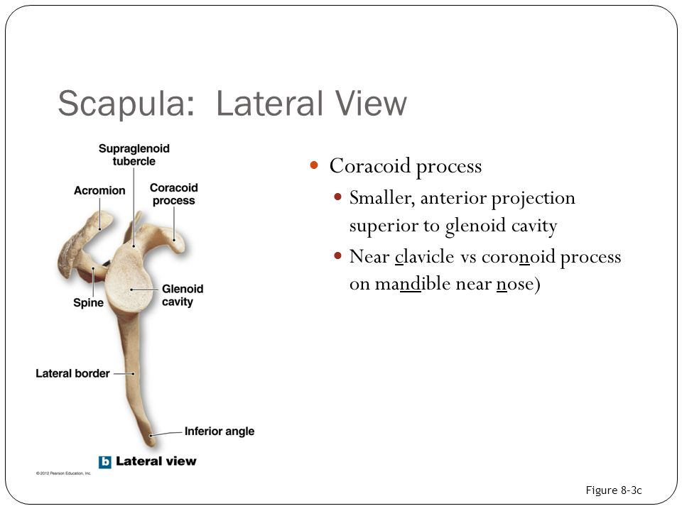 Scapula: Lateral View Coracoid process Smaller, anterior projection superior to glenoid cavity Near clavicle vs coronoid process on mandible near nose