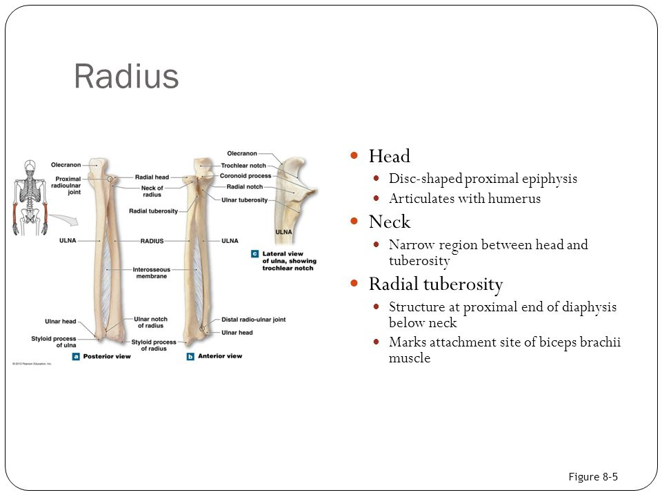 Radius Head Disc-shaped proximal epiphysis Articulates with humerus Neck Narrow region between head and tuberosity Radial tuberosity Structure at prox