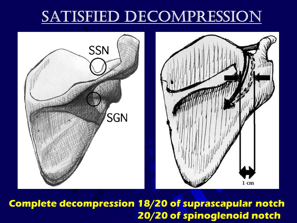 Satisfied decompression Complete decompression 18/20 of suprascapular notch 20/20 of spinoglenoid notch