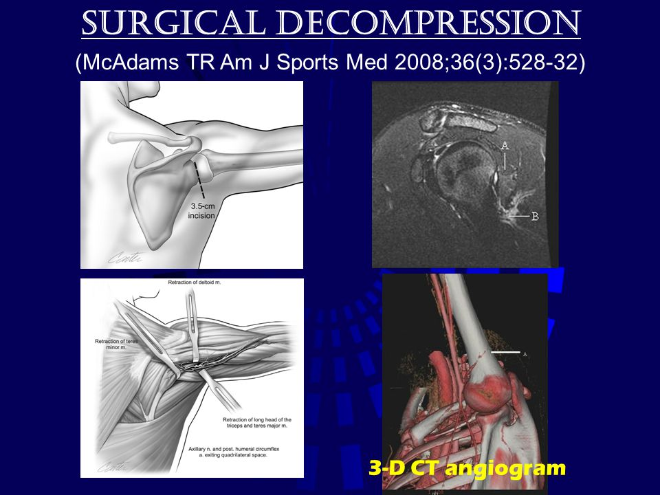 Surgical decompression (McAdams TR Am J Sports Med 2008;36(3):528-32) 3-D CT angiogram