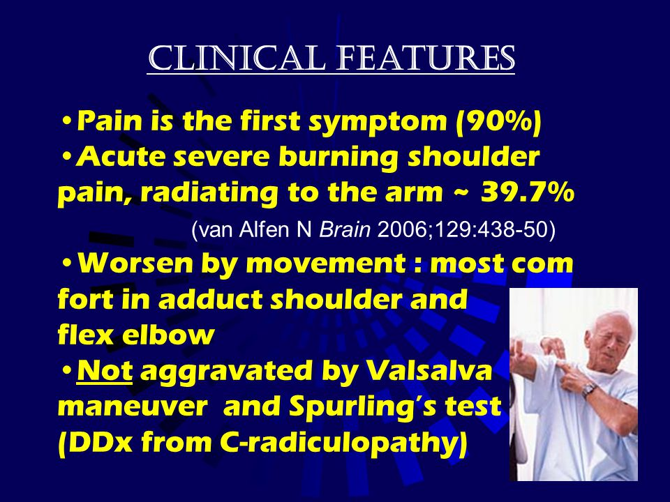 Clinical features Pain is the first symptom (90%) Acute severe burning shoulder pain, radiating to the arm ~ 39.7% (van Alfen N Brain 2006;129:438-50)