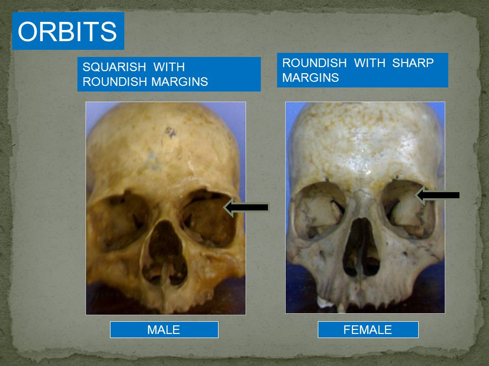 The frontal bone (forehead) of males tends to be slanted back and on females it tends to be more rounded
