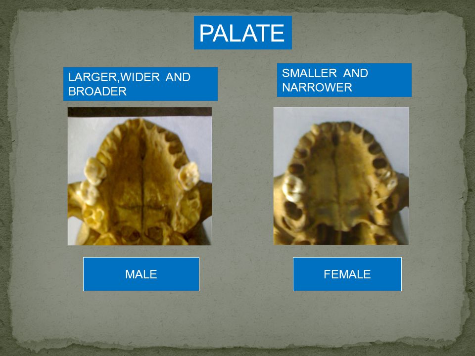 Slide 27: Using the previous slides and pictures, identify whether the following skull parts are from a male or female.