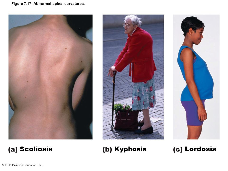 © 2013 Pearson Education, Inc. Figure 7.17 Abnormal spinal curvatures. Scoliosis Kyphosis Lordosis