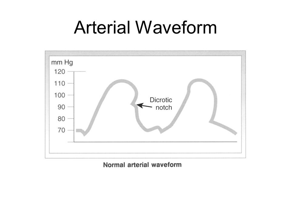Arterial Waveform