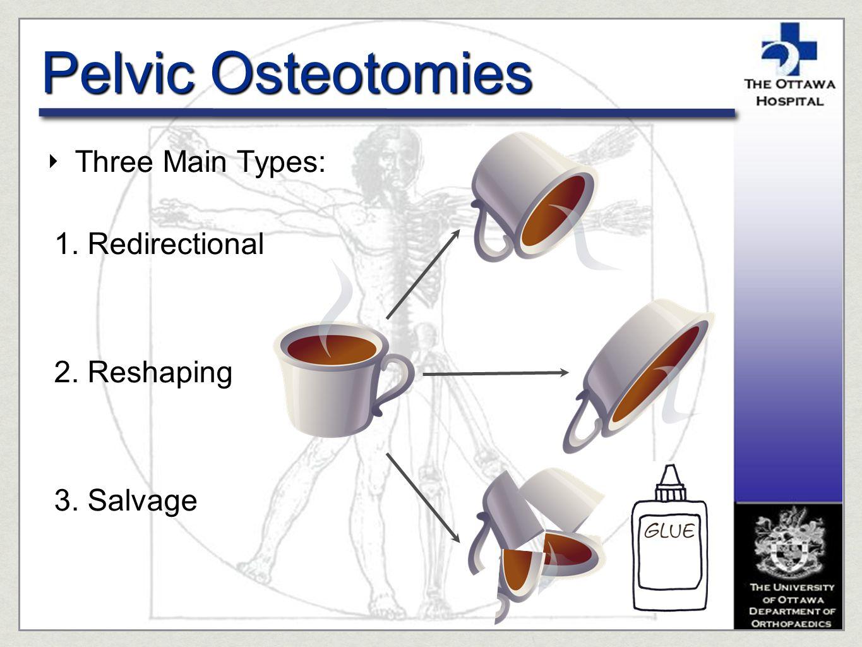 Pelvic Osteotomies ‣ Three Main Types: 1. Redirectional 2. Reshaping 3. Salvage