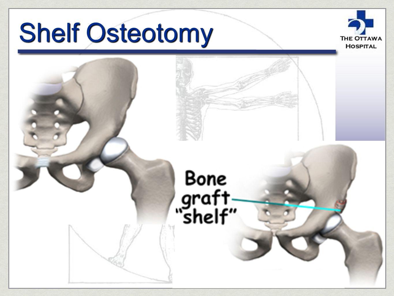Shelf Osteotomy
