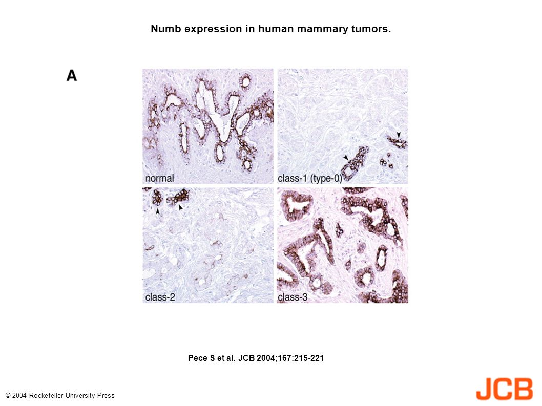 Numb expression in human mammary tumors. Pece S et al.