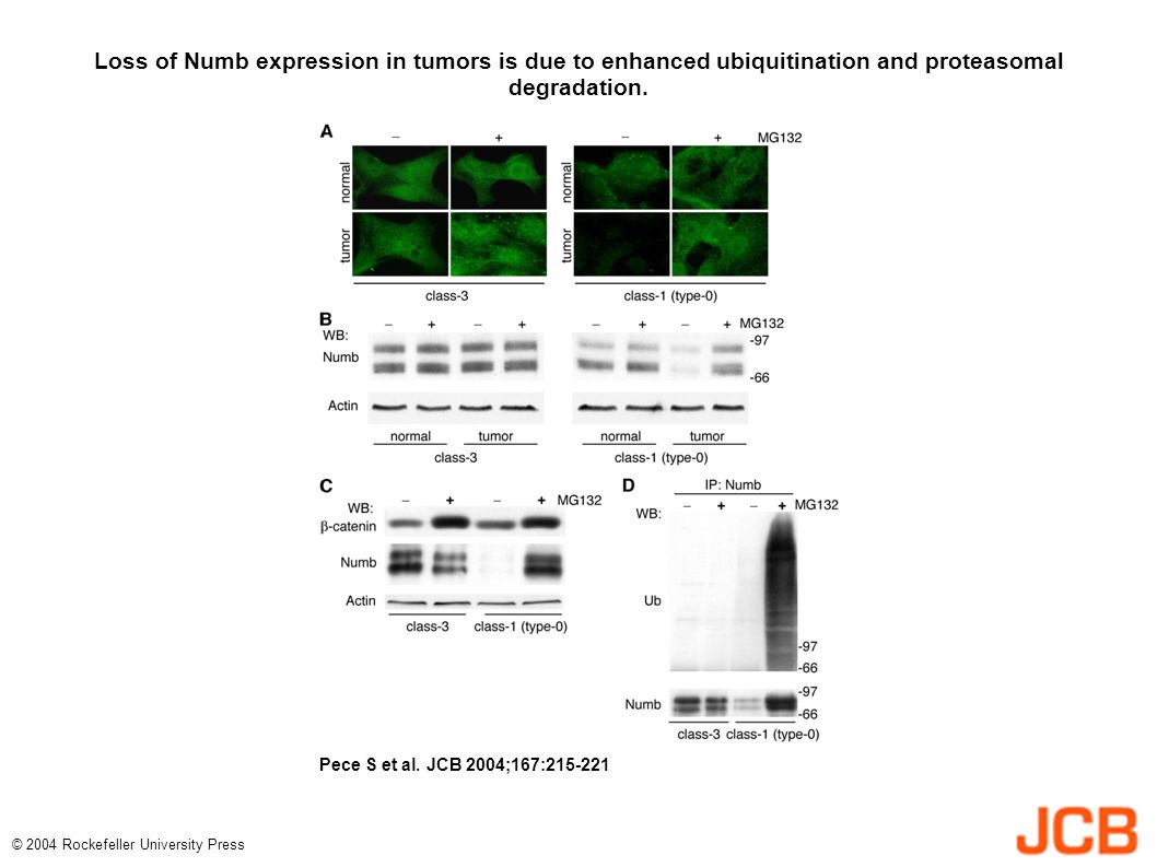 Loss of Numb expression in tumors is due to enhanced ubiquitination and proteasomal degradation.
