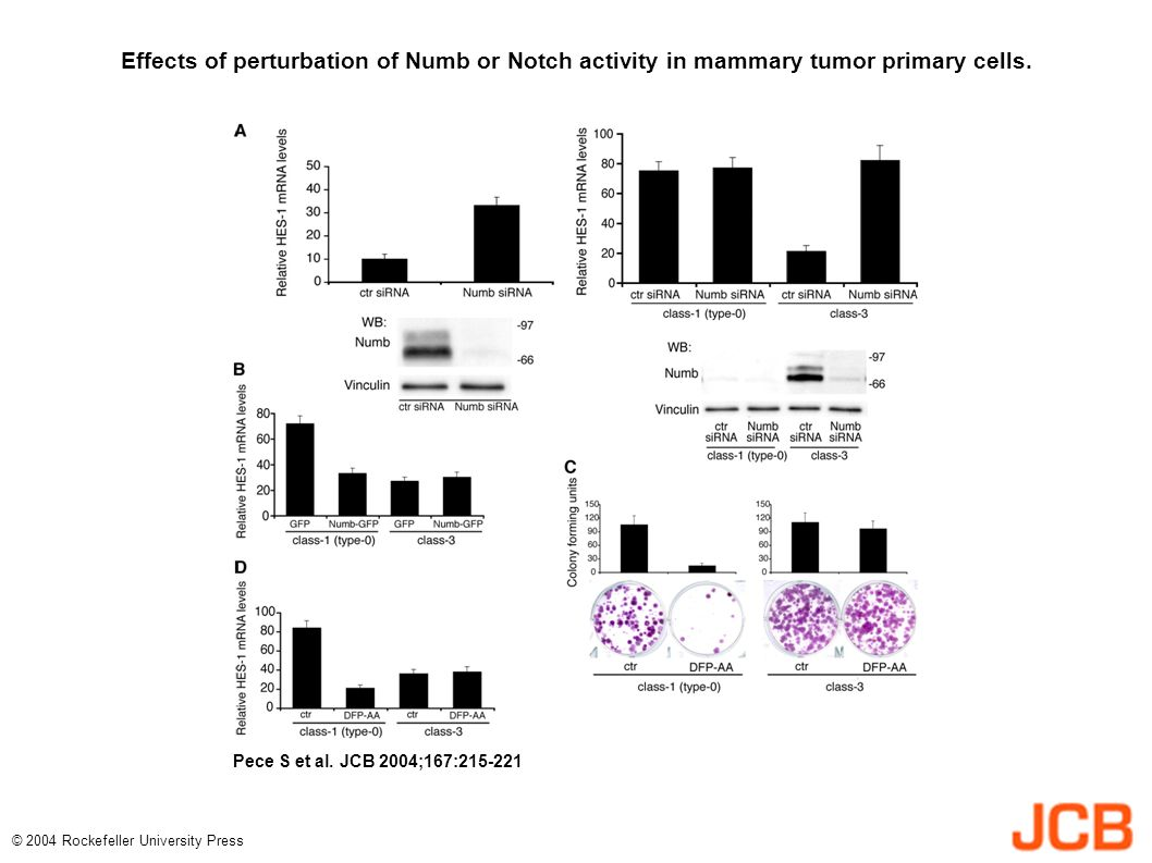 Effects of perturbation of Numb or Notch activity in mammary tumor primary cells.